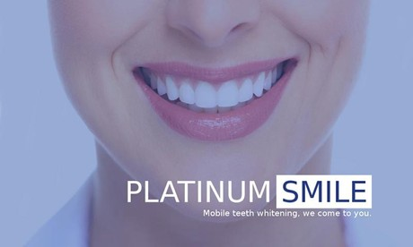 Platinumsmile Mobile Teethwhitening